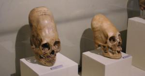 Paracas_elongated_skulls